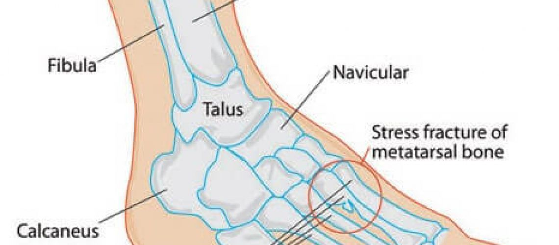 stress_fractures_feet
